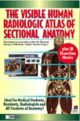 Visible Human Radiologic Atlas of Sectional Anatomy