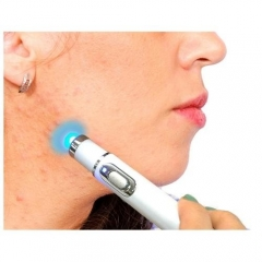 Blue Light Acne Removal Pen