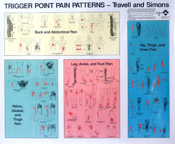 Travell simons trigger point pain patterns wall charts i ii lww travell simons trigger point pain patterns wall charts i ii ccuart Choice Image